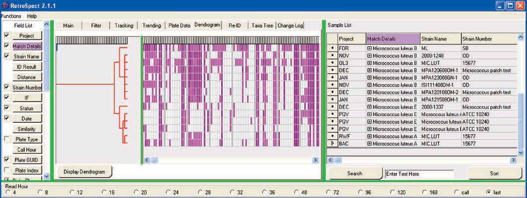 RetroSpect™ Software Screenshot