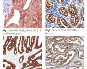 Antibody - Cytopathology