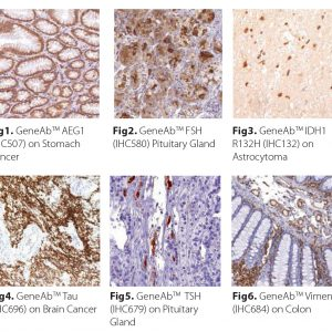Neuropathology Antibodies